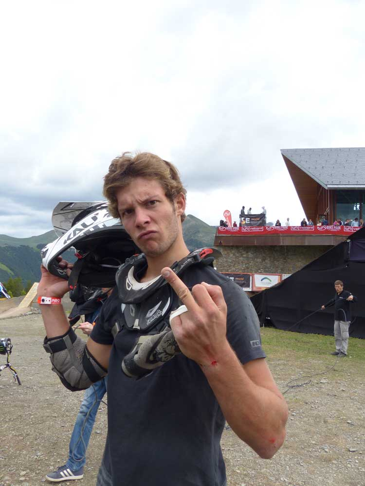 Slopestyle Mountain Bike Crash By – Antoine Bizet